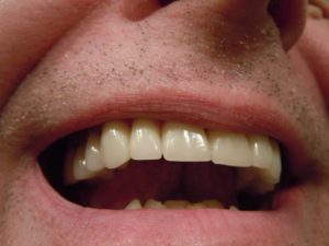 close up picture of a man's teeth