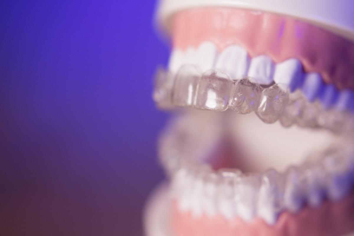 Invisalign on teeth model